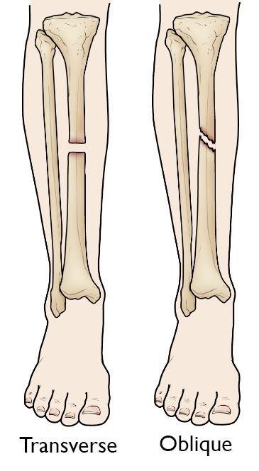 gãy ngang và chéo thân xương chày