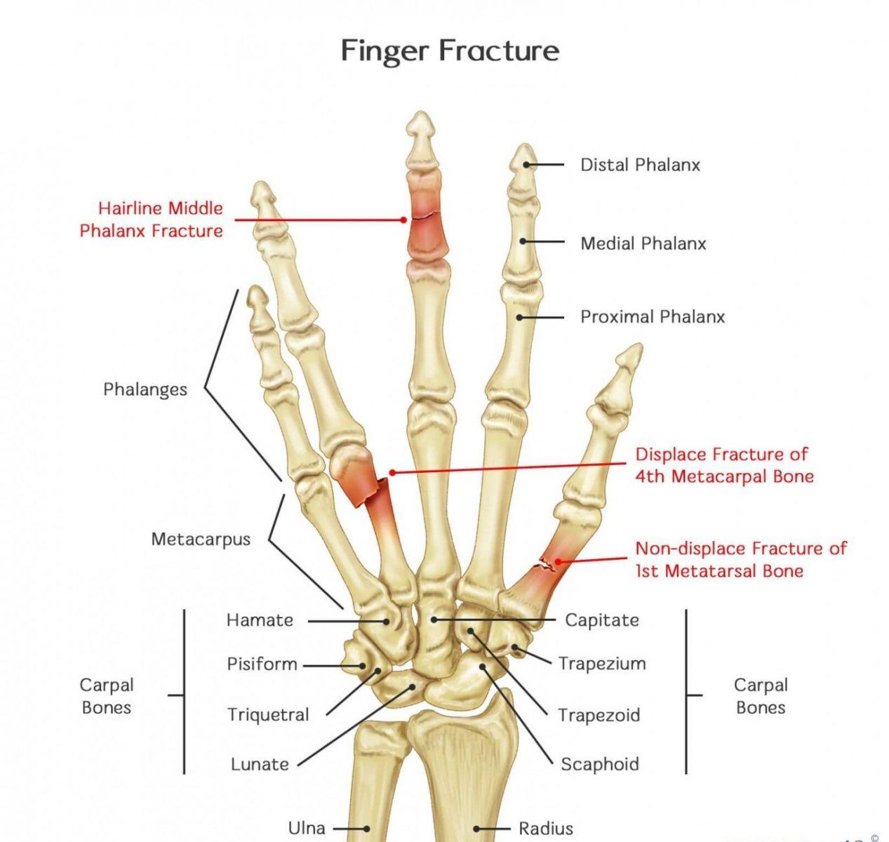 gãy xương ngón tay 1