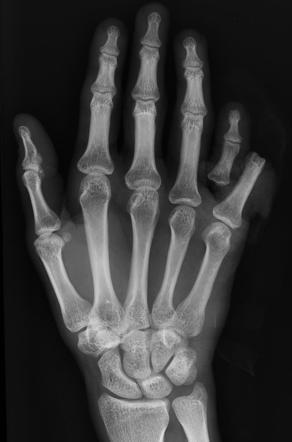 điều trị gãy xương ngón tay