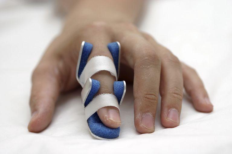 nẹp ngón tay