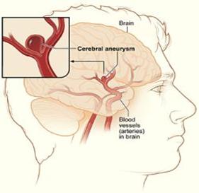 Description: http://bestcarevn.com/upload/image/aneurysm-sized.jpg