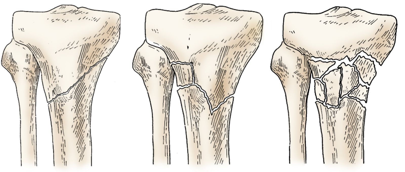 phân loại gãy đầu trên xương chày 2