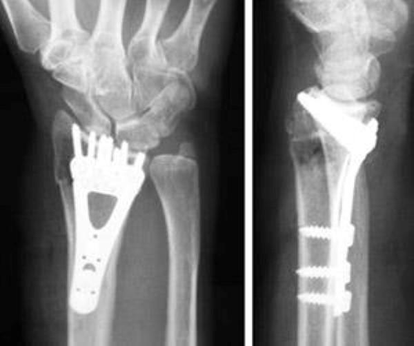 phẫu thuật gãy đầu dưới xương quay