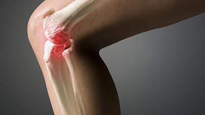 viêm khớp do lupus ban đỏ