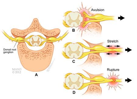 vật lý trị liệu tại nhà tổn thương thần kinh cánh tay