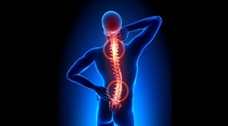 Description: vật lý trị liệu thoái hoá cột sống