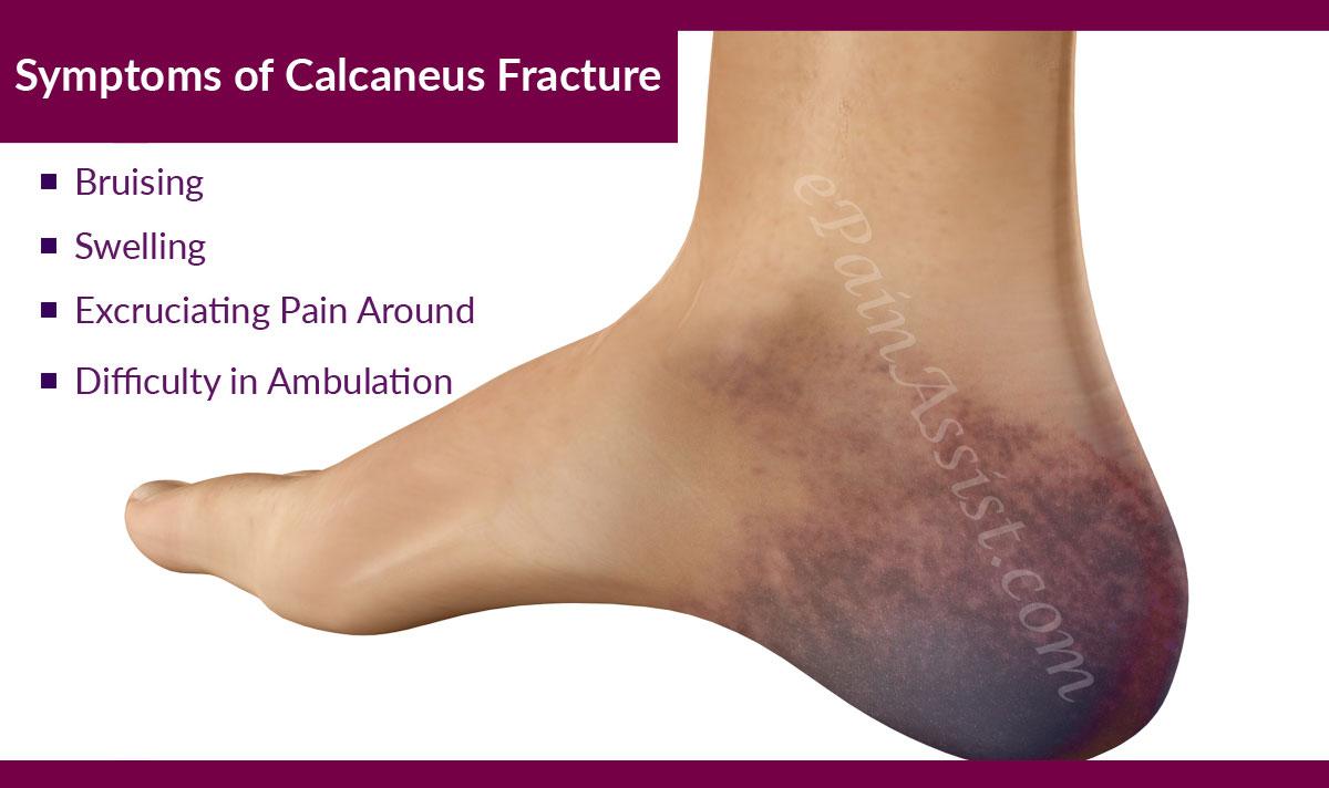 triệu chứng gãy xương gót