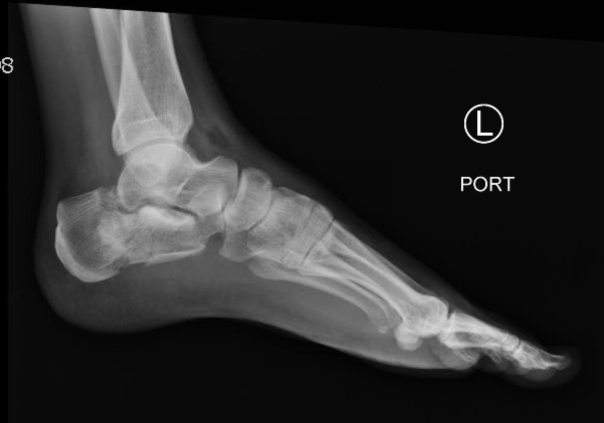 xương gót xquang