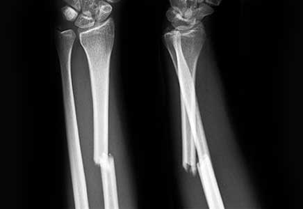 xquang gãy xương cẳng tay