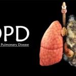 VẬT LÝ TRỊ LIỆU BỆNH PHỔI TẮC NGHẼN MÃN TÍNH (COPD) TẠI NHÀ